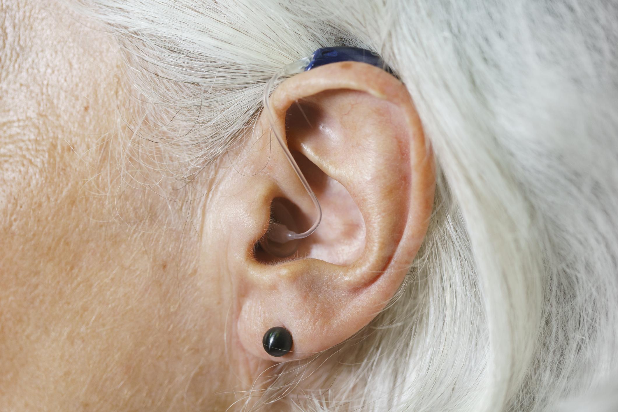 Appareil auditif rechargeable